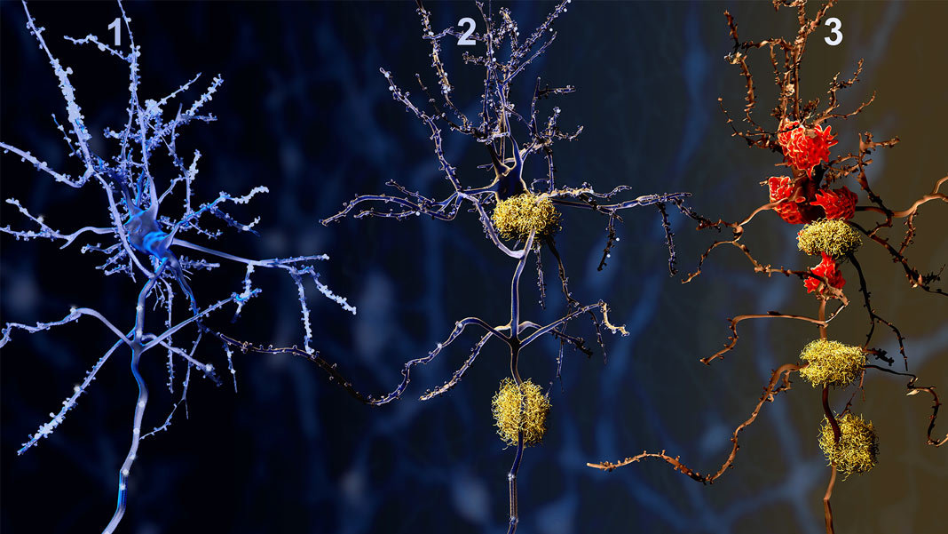 The Gene Therapy Trial Aiming to Fend Off Alzheimer's
